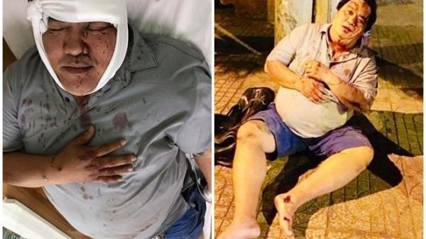 Nghệ sĩ Hoàng Mập bị tai nạn giao thông, th.ương tích khắp người, tình trạng nguy kịch