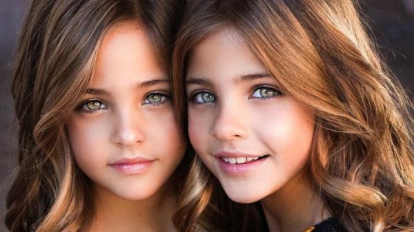 """2 cô bé được gọi là """"cặp song sinh đẹp nhất thế giới"""" năm xưa giờ ra sao?"""