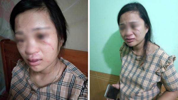 Vợ mang thai 8 tháng bị đánh xước xát mặt mũi vì giấu chồng đặt mua đôi giày 135k trên mạng