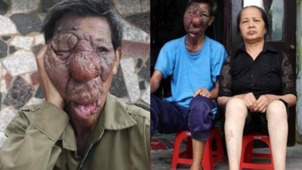 Số phận bi thương của 'ông lão mặt quỷ' 43 năm bị người đời khiếp sợ, xa lánh
