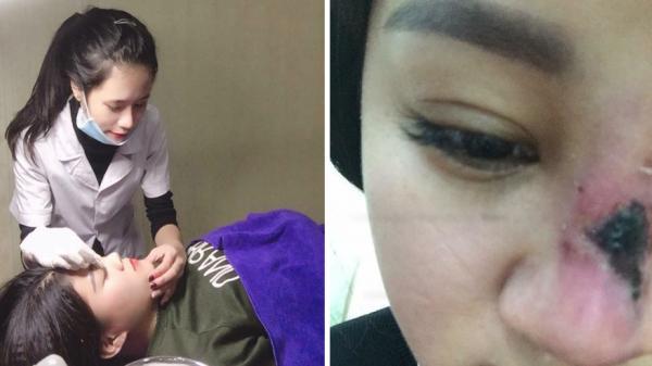 Để nữ 'Giám đốc' sinh năm 2001 ở Bắc Giang PTTM, cô gái bị thủng mũi, hoại tử da phải dùng da tay đắp vào thay thế