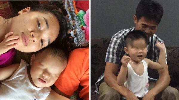 Bé trai 3 tuổi không có đôi mắt ở Bắc Giang: 'Cháu muốn được nhìn thấy cha mẹ'