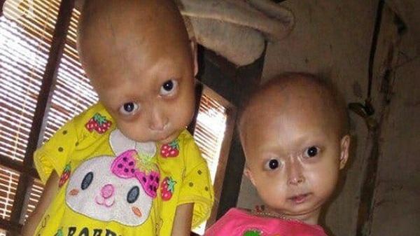 """Tuyên Quang: 2 chị em gái mắc bệnh lạ khiến đầu, cổ bị nghẹo tựa """"người ngoài hành tinh"""" khiến ai nhìn cũng xót xa"""