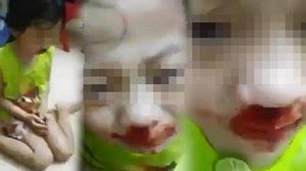 Phẫn nộ: Bé gái mặt dính máu, bị mẹ đánh rồi live stream trên facebook