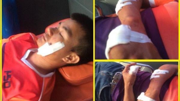 Nam Định: Nghi tranh giành khách, một lái xe bị chém trọng thương