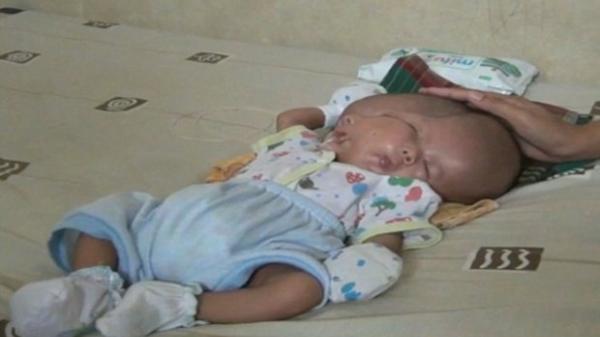Đau đớn bé trai sinh ra với hai khuôn mặt, hai bộ não trên cùng một cơ thể