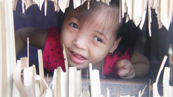 Xót cảnh bé gái 7 tuổi bị não úng thủy, suốt ngày chỉ biết lết theo mẹ xin ăn cơm mà không có tiền đi bệnh viện chữa trị