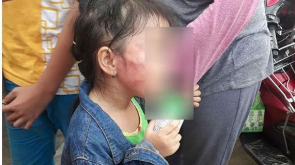 Xót xa bé gái 5 tuổi nghi bị bảo mẫu tát liên tục đến sưng mặt, dọa lấy kéo cắt lưỡi nếu nói cho gia đình biết