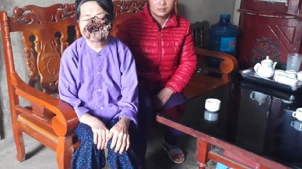"""Bắc Kạn: Một trường hợp mắc bệnh """"lạ"""" cần được giúp đỡ"""