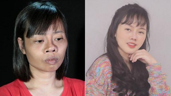 """Tai nạn trên đường đi lấy bằng tốt nghiệp khiến khuôn mặt biến dạng, cô gái Thái Bình quyết tâm """"l.ột x.ác"""" và thành quả đầy bất ngờ"""