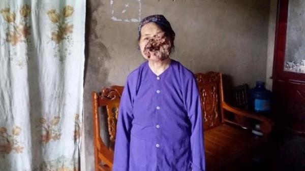 Nỗi đau khổ của cụ bà 3 năm sống chung với khuôn mặt biến dạng