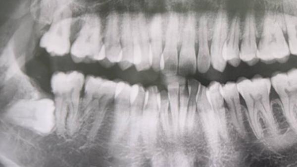 Buộc phá thai vì răng khôn áp xe nặng, thủng má