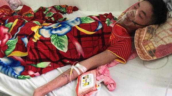 Hoàn cảnh bất hạnh của nam công nhân Bắc Ninh nguy kịch tính mạng vì biến chứng sau cơn sốt cao