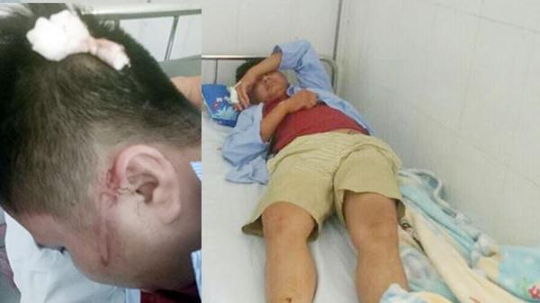 Điều tra nghi án tài xế điều 'xã hội đen' đến hành h.u.n.g hành khách khi cãi nhau trên xe ở Quảng Ninh