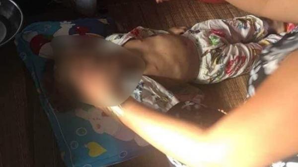 """Vĩnh Long: Bé gái 4 tuổi nghi bị """"bạo hành"""" dẫn đến t.ử v.ong"""