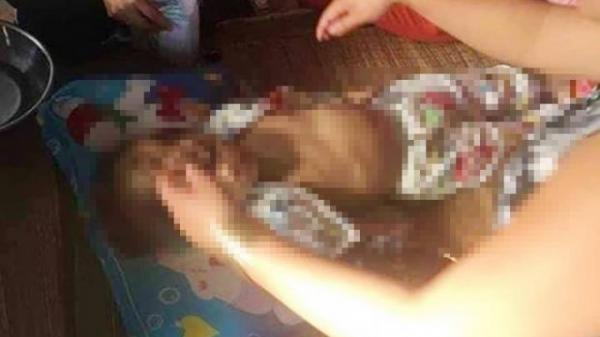 Vụ bé gái 4 tuổi nghi bị bạn thân của cha đánh ch.ết ở Vĩnh Long: Nạn nhân bị nứt hộp sọ, bụng có nhiều vết châm thuốc lá