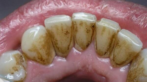 """Có 4 dấu hiệu này ở miệng thì coi chừng cao răng đang """"bành trướng"""", gây ê buốt lẫn hàng tá bệnh nha chu"""