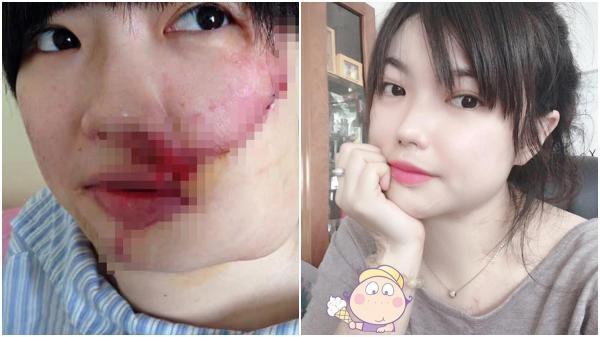 """Cô gái xinh đẹp bị kẻ """"cuồng yêu"""" Bến Tre tạt axi.t và 20 lần phẫu thuật lấy lại diện mạo"""