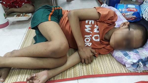 Cậu bé 10 tuổi ở Đồng Nai quằn quại đau đớn vì ung thư