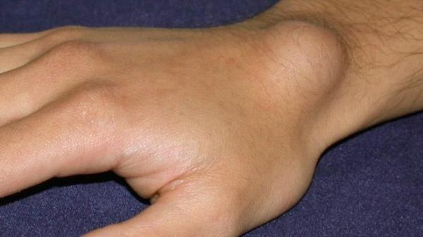 Khi xuất hiện 4 dấu hiệu này hãy coi chừng trong cơ thể bạn đã có tế bào ung thư