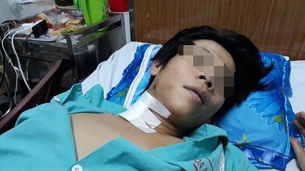 Bình Phước: Xem súng tự chế, thanh niên bị đạn bắn trúng cổ