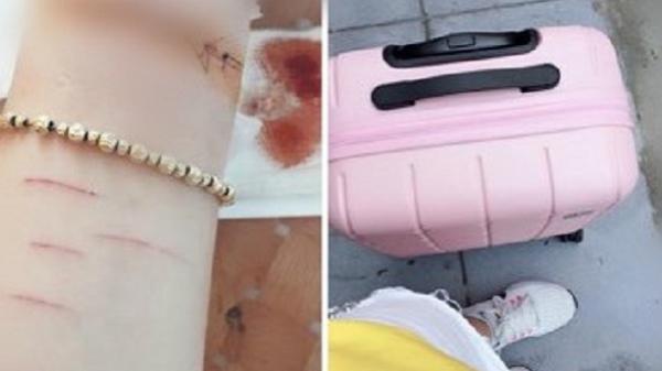 Cô gái Sài Gòn dùng d ao lam rạch tay vì bị bạn trai phản bội