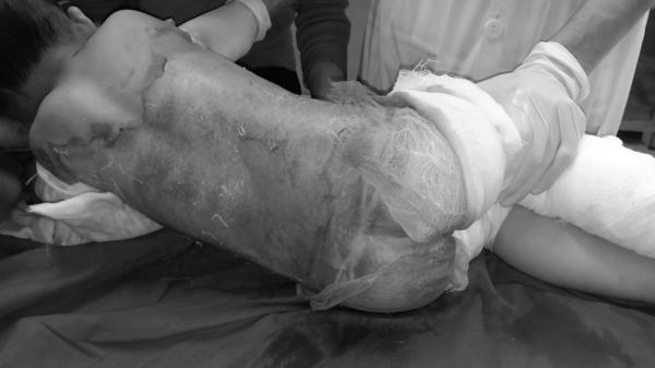 Cha mẹ bất cẩn, bé trai 3 tuổi bị lột da khắp người