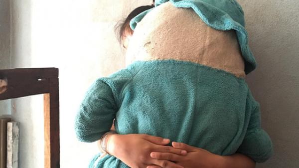 Vụ bé gái 11 tuổi câm điếc bị xe ôm giở trò đồi bại: Tìm thấy ADN nghi phạm trong vùng kín của bé gái