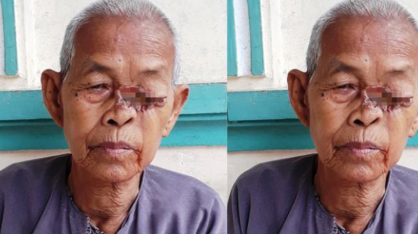 An Giang: Bà lão với vết lở ở mắt không tiền chữa trị