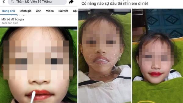 """Đại diện thẩm mỹ viện phun môi cho bé gái 5 tuổi lên tiếng: """"Con gái là ngọc ngà trong nhà nên đâu có chuyện làm những gì không tốt cho bé"""""""