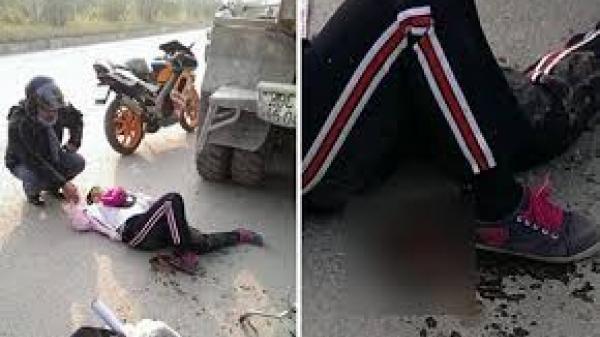 Tai nạn thương tâm của bé gái lớp 4 bị xe tải cán ngang người, bị mẹ tát và cấm không cho đi học, giờ gãy đôi chân muốn đi học cũng không được