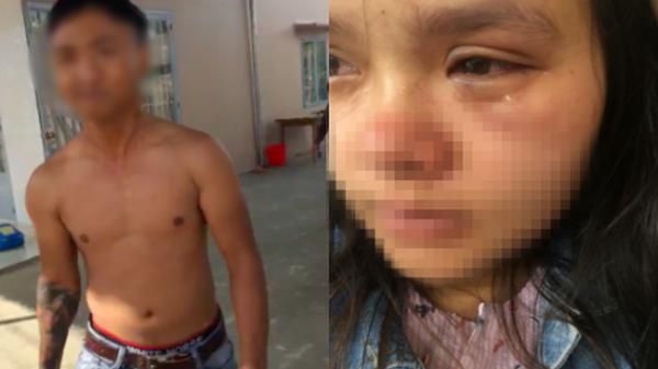 Bầu vượt mặt 9 tháng, người vợ trẻ phải livestream vì bị chồng đánh tới tấp, bầm tím mắt khiến CĐM sục sôi