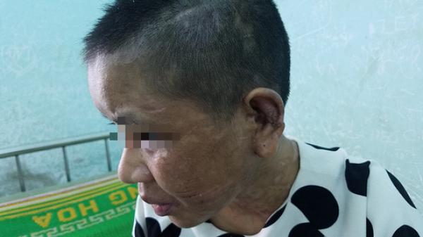 Lời kể rợn người của cô gái bị chủ bạo hành đến sảy thai, biến dạng mặt mũi