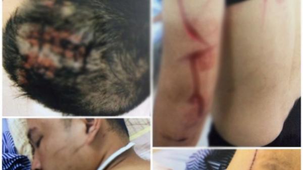 Hải Phòng: 'Cát tặc' chém trọng thương chủ đầm tôm vì dám ngăn cản