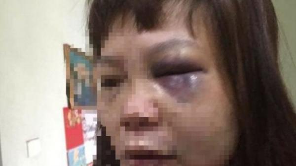 Quảng Ninh: Công an triệu tập người chồng vũ phu đưa vợ lên đồi cắt gân chân