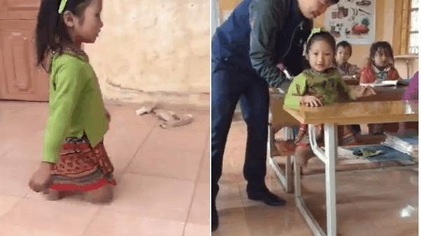 Bé gái dân tộc hỏng cả 2 chân ngày ngày lê 2 mỏm gối cụt đến trường khiến cộng đồng mạng xúc động