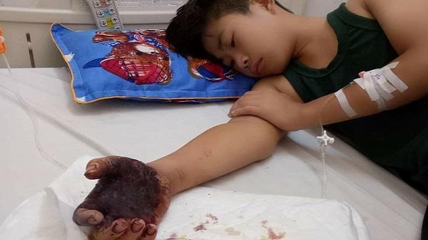 Xót xa cảnh người cha đơn thân nghèo nhìn con đau đớn bởi vết rắn độc cắn khi đang hái điều phụ gia đình