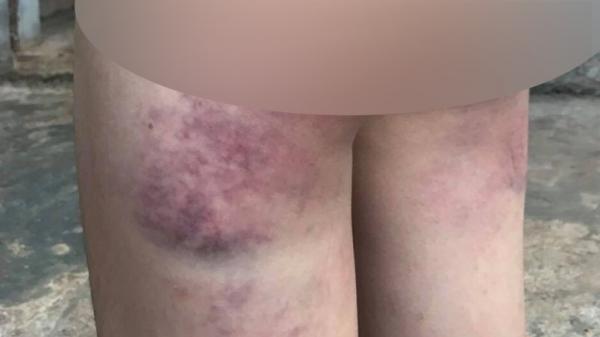 Đắk Lắk: Cô giáo bị tố đá.nh học sinh lớp 4 bầ.m tím người