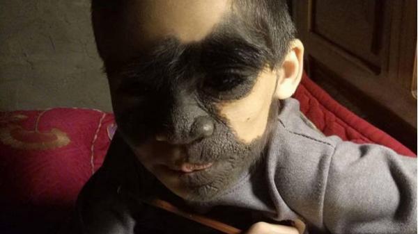 """Xót thương bé trai 6 tuổi bị nổi u khắp mặt tựa """"người rừng"""" từ khi mới chào đời"""