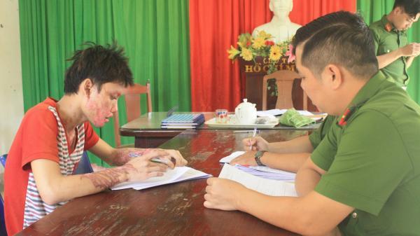 Đà Nẵng: Ghen tuông, nam thanh niên 20 tuổi tạt axít vào người yêu rồi tự sát