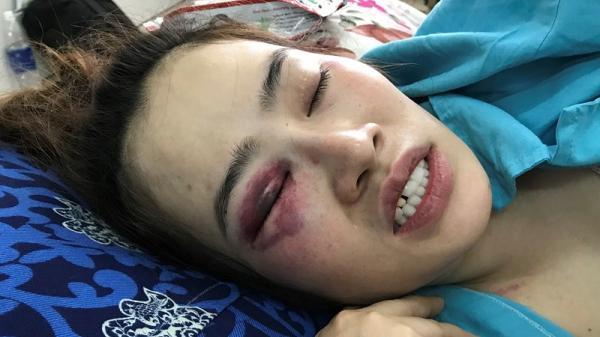 Đà Nẵng: 1 thanh niên đánh cô gái trong quán bánh xèo nhập viện