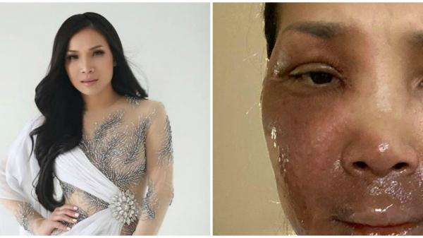 Ca sĩ Hồng Ngọc công khai khuôn mặt bỏng nước sôi ai thấy cũng xót xa