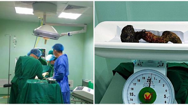 Bình Thuận: Lấy ra búi tóc gần nửa kg trong bụng bệnh nhi 10 tuổi
