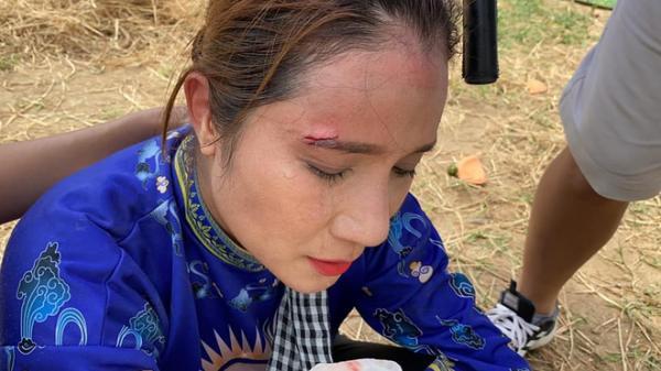 MC Cát Tường gặp tai nạn khi đang ghi hình, phải khâu 3 mũi không có thuốc tê