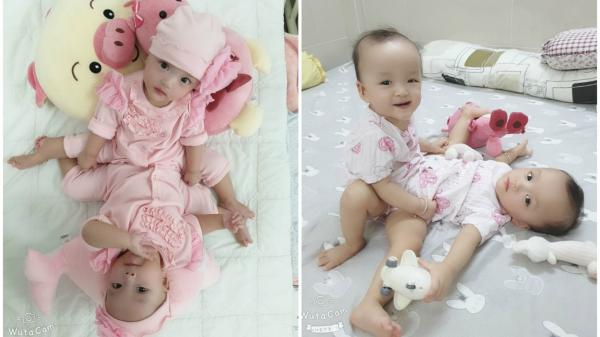 Ca phẫu thuật định mệnh của 2 bé gái dính nhau vùng bụng