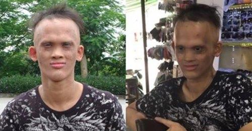 Nghị lực sống của chàng trai không răng, ít tóc bị gọi là 'người ngoài hành tinh'