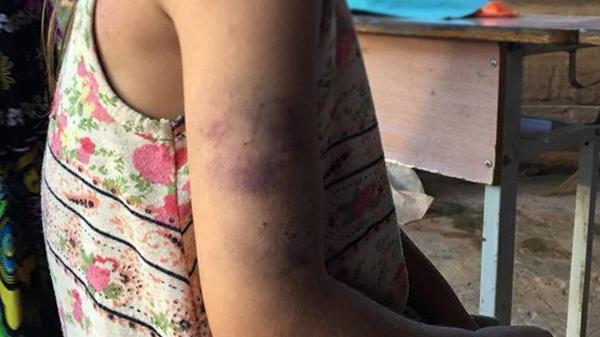 Điện Biên: Viết chữ xấu, học sinh lớp 2 bị cô giáo đánh bầm tím