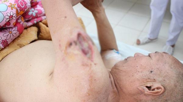Điện Biên: Tự tiêm mật gấu tại nhà một người bị nhiễm trùng nặng