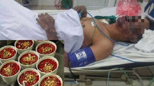 NÓNG: 50 người bị ngộ độc sau khi ăn tiết canh lợn rừng