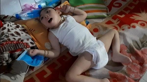Xót xa bé gái 3 tuổi chỉ nằm một chỗ vì mắc căn bệnh hiếm gặp